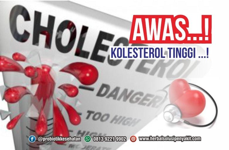kenali tanda tanda kolesterol tinggi