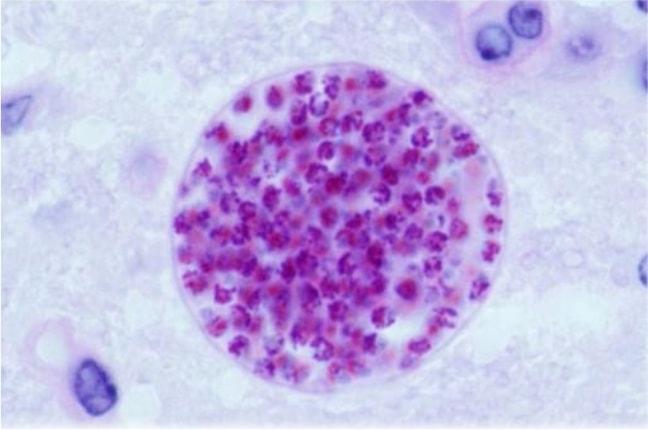 virus toksoplasma