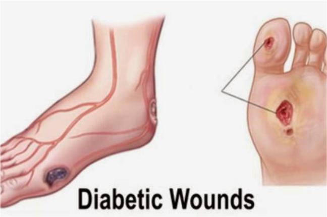 luka karena diabetes