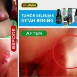 biojanna - tumor getah bening
