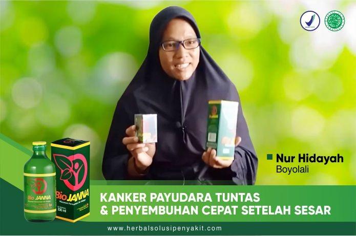 kanker payudara dengan herbal biojanna